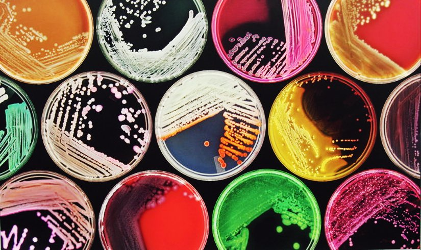cultivos de bacterias en cajas de petri